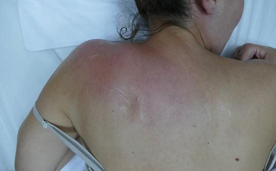 בדיקה טרמית לאחר 20 דק' טיפול עם סוליו אלפא קיור פלוס